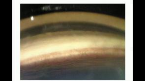 Early Detection and Management of Neovascular Glaucoma