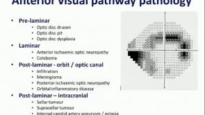 Neuro-ophthalmic Problems in Glaucoma Part 2