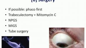 Uveitic Glaucoma Part 2