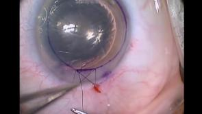 Endothelial Keratoplasty Part 5
