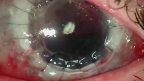 Suprachoroidal Haemorrhage Part 2 Discussion