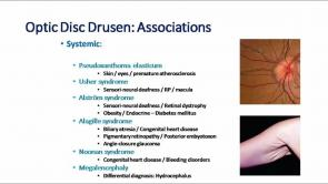 Optic Disc Drusen Part 1