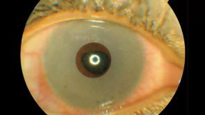 Eye Colour Change Surgery - Photo Essay 1