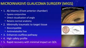 Advances in Ophthalmology - Corneal Transplantation, Cataract Surgery, Glaucoma Surgery & Vitreolysis