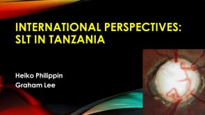 Selective Laser Trabeculoplasty in Tanzania